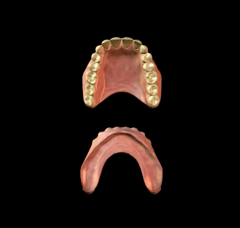 what are the different types of dentures in lake worth