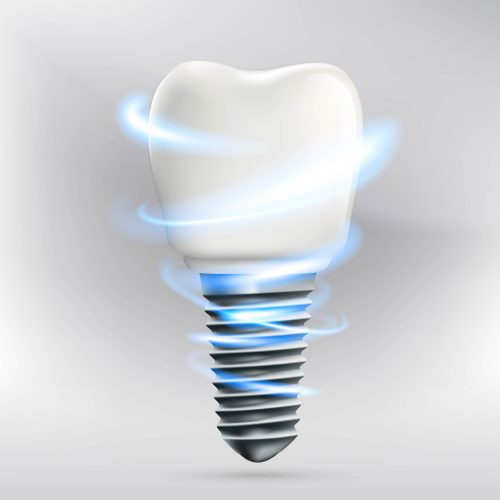 what are the parts of dental implants in boca raton