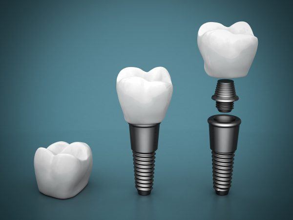 replace missing teeth with dental implants in boca raton