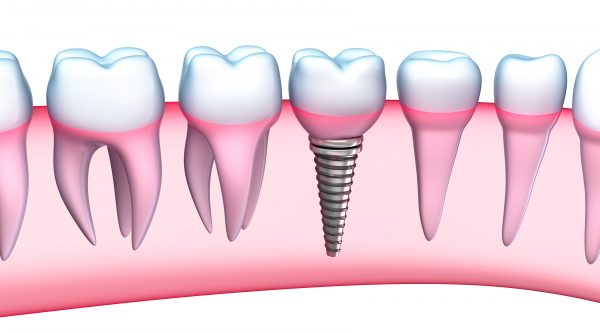 pros and cons of dental implants in West Palm Beach