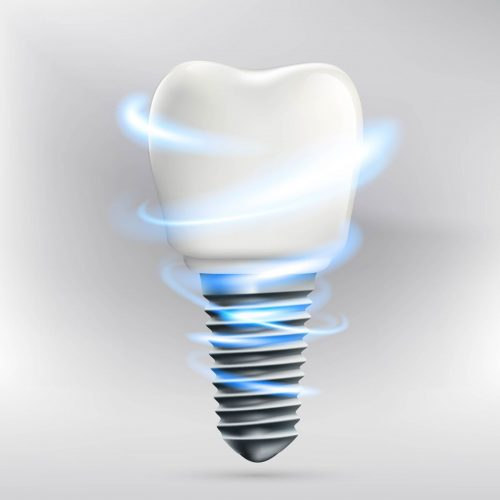 where can i get dental implants in boca raton