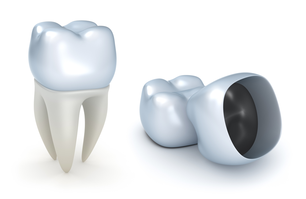 Are there different types of dental crowns in Lake Worth?