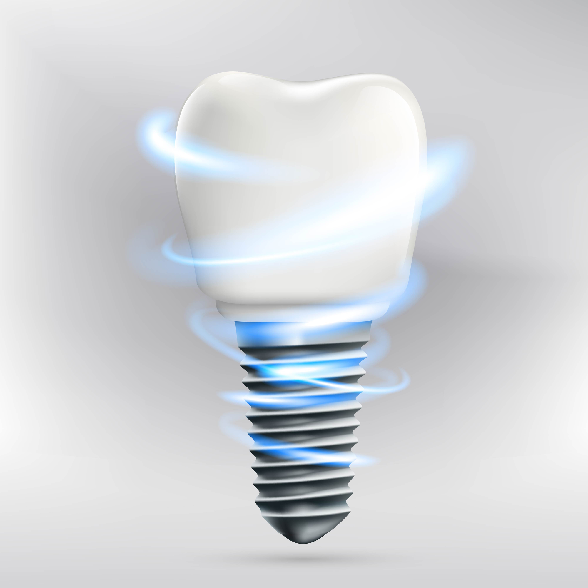 What are the benefits of dental implants in Boca Raton?