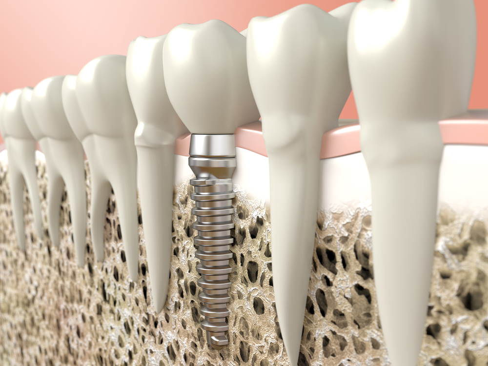 Can dental implants in Boca Raton restore my smile?