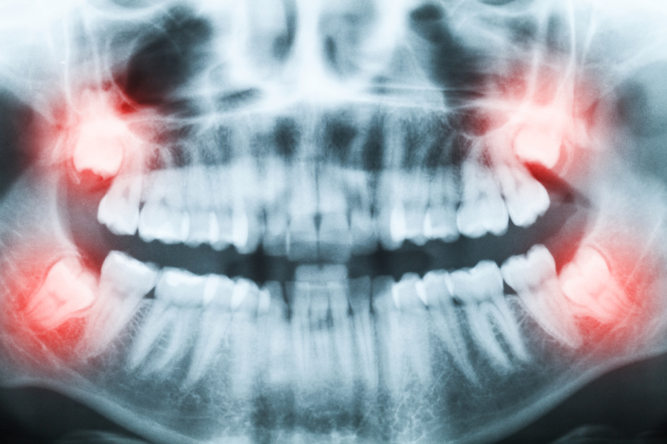 What should I know about removing my wisdom teeth in West Palm Beach?