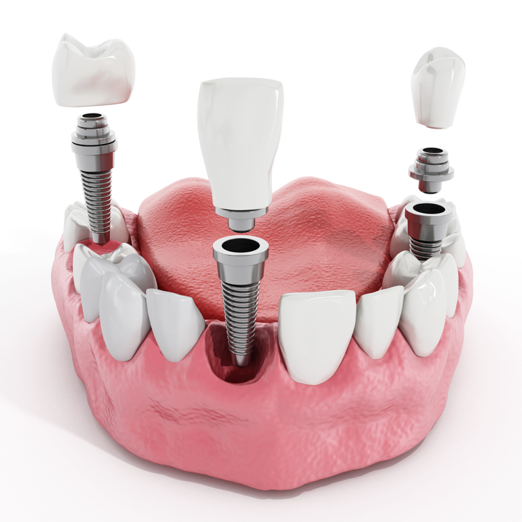 Why are dental implants in West Palm Beach right for me?