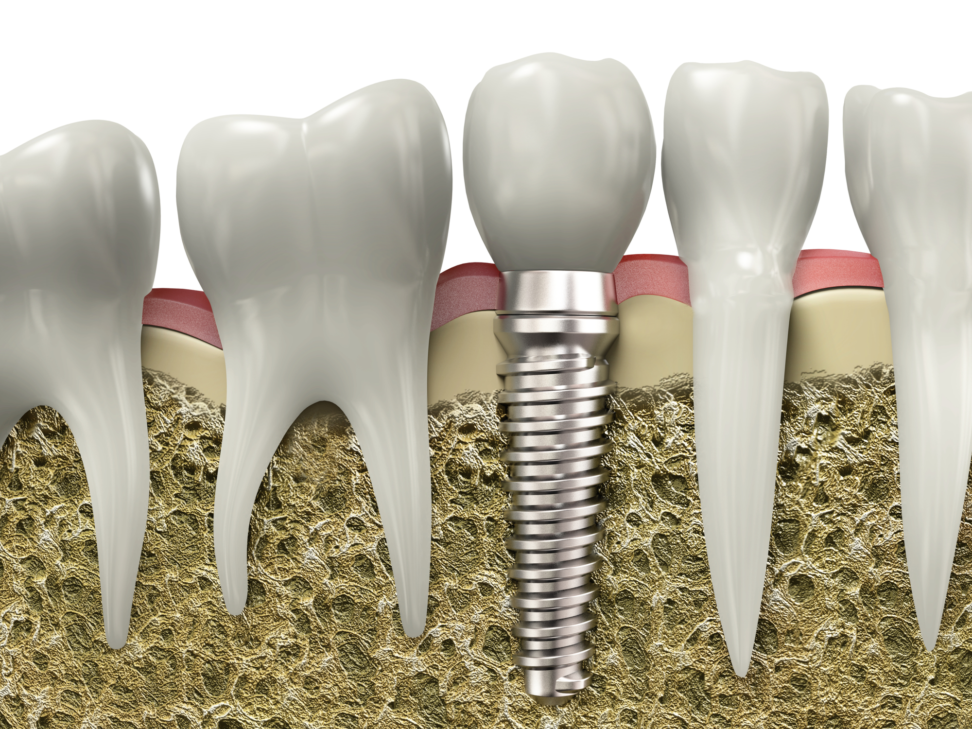 Why should I choose dental implants in Boca Raton to restore my smile?