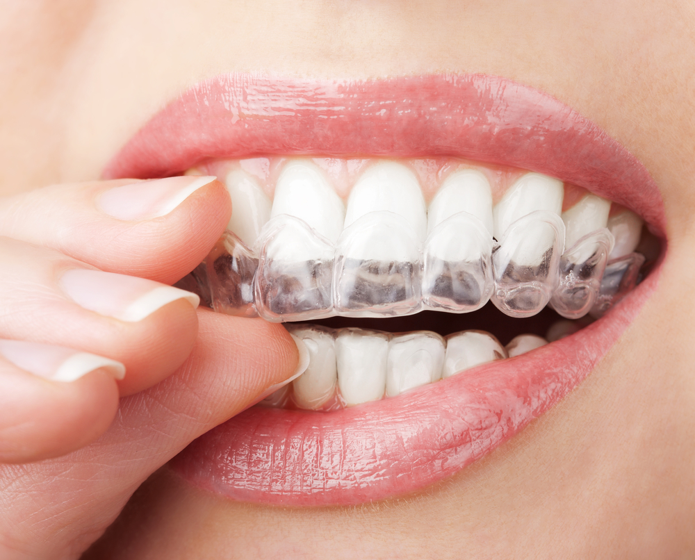 What oral health issues can Invisalign in West Palm Beach prevent?