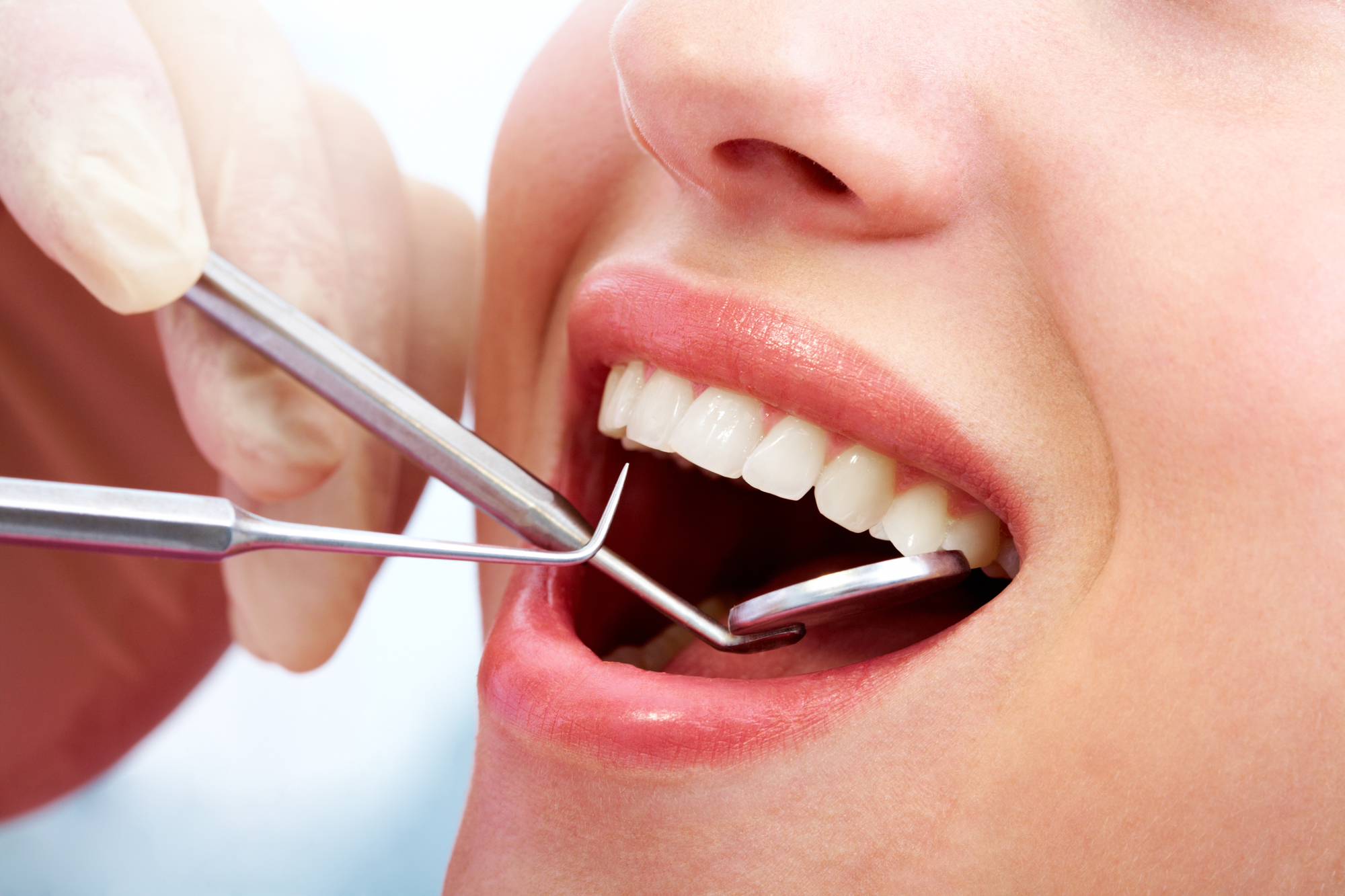 Which dentist in Boca Raton can give me dental fillings?
