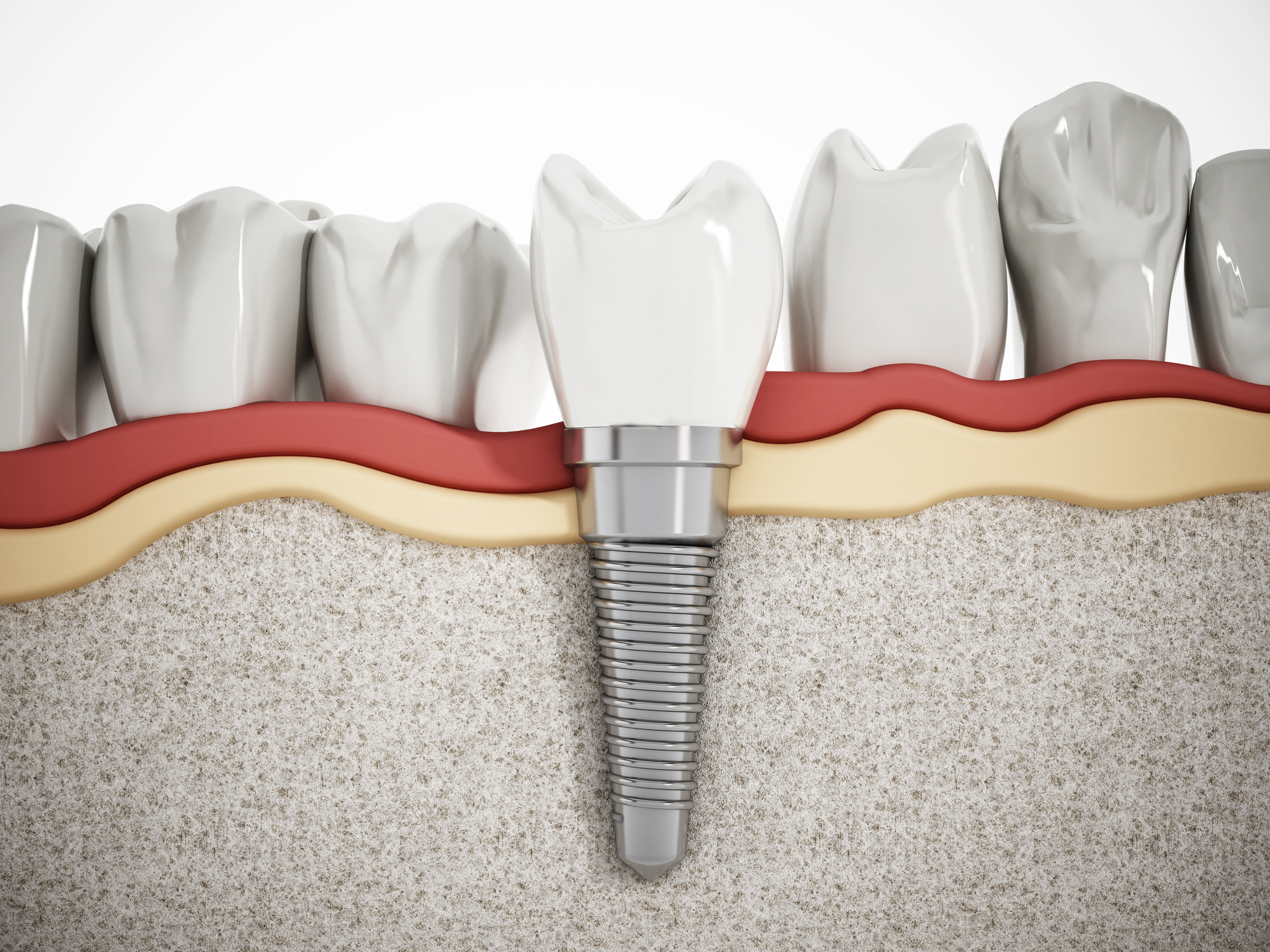 How do dental implants in Boca Raton compare to bridges?