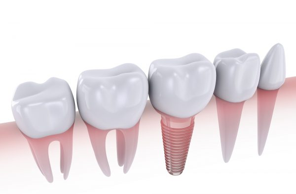 What do I have to gain from dental implants in Lake Worth?