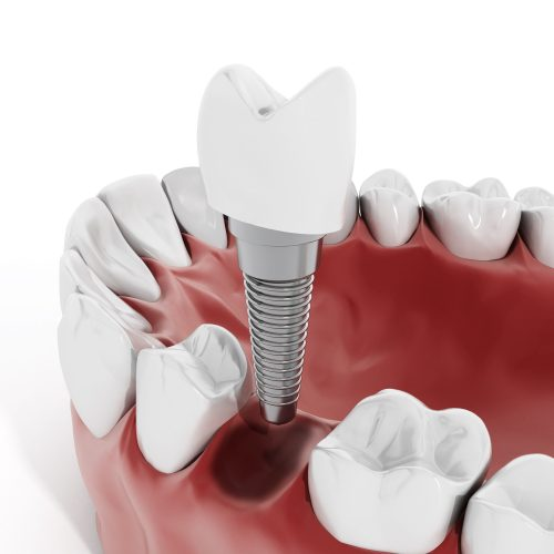 Where can I get the best dental implants in Boca Raton?