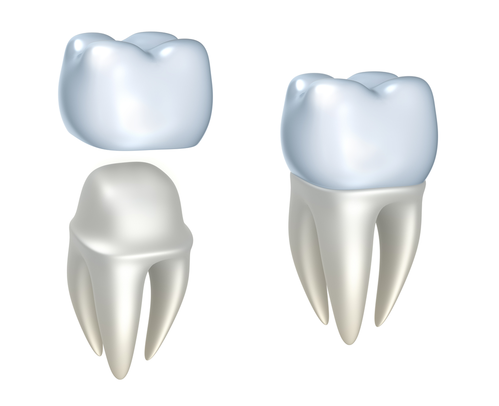Where can I find Dental Crowns in Lake Worth ?
