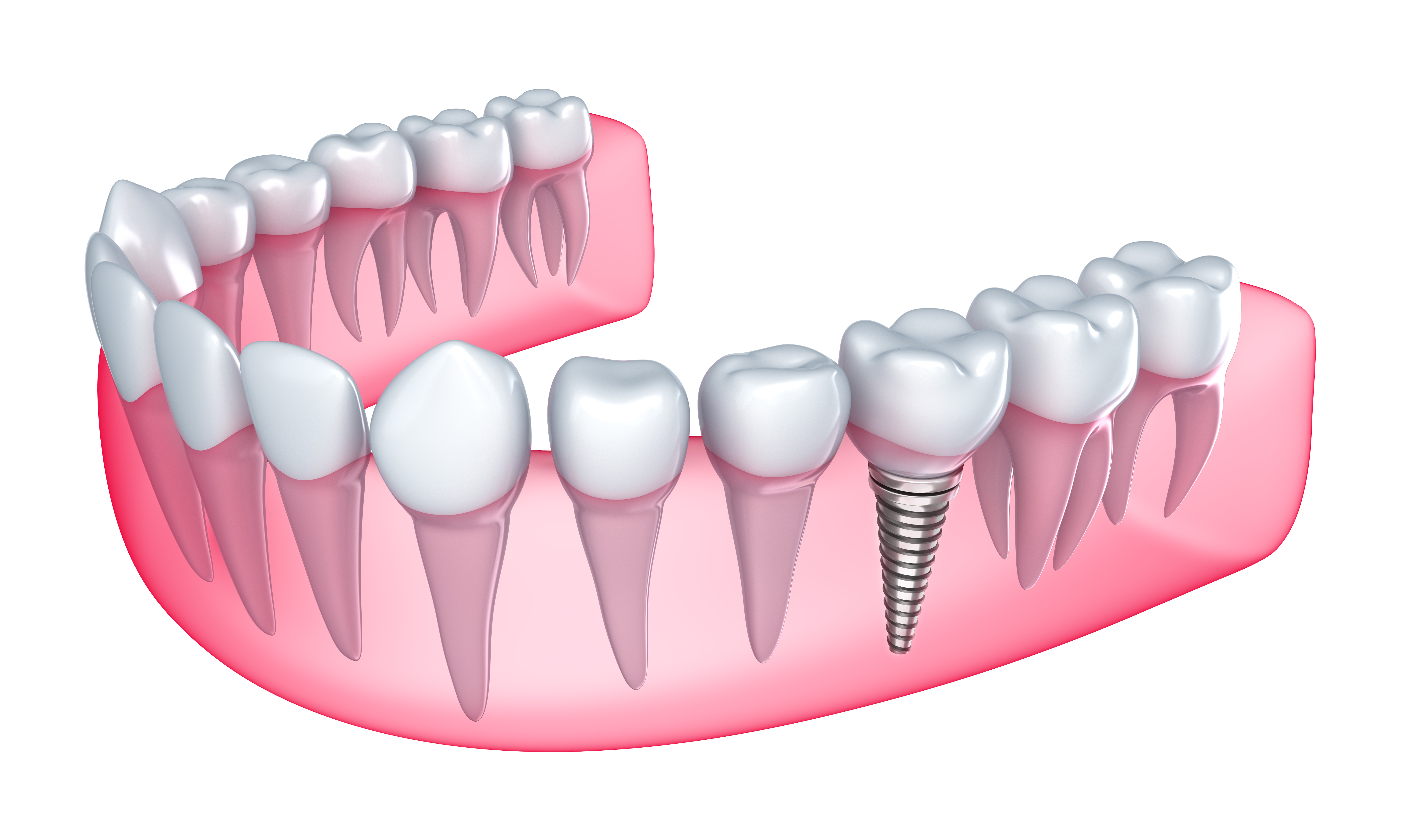 What dentist can help me with Dental Implants in Boynton Beach ?