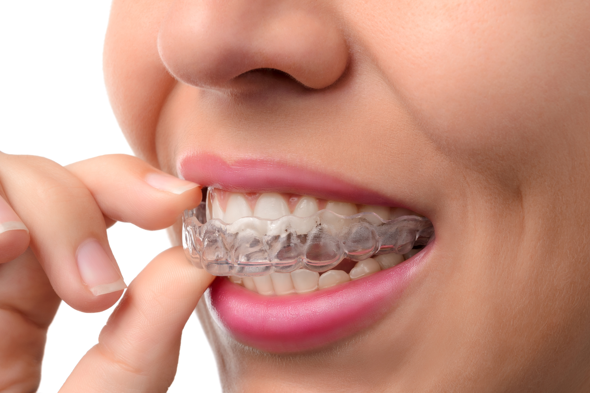 Where can I find Invisalign in West Palm Beach ?