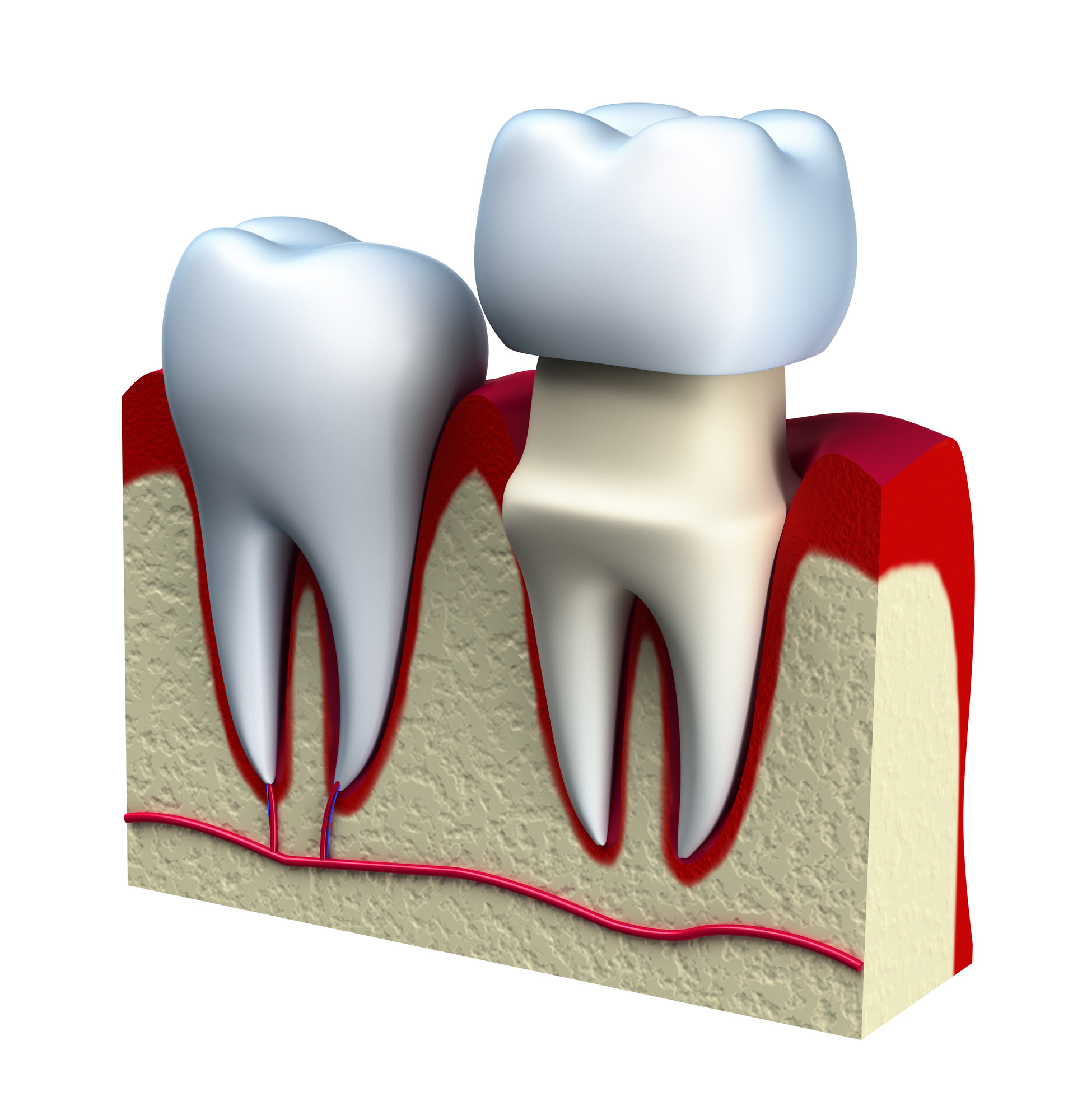 Who is the best dentist for Dental Crowns in Lake Worth ?
