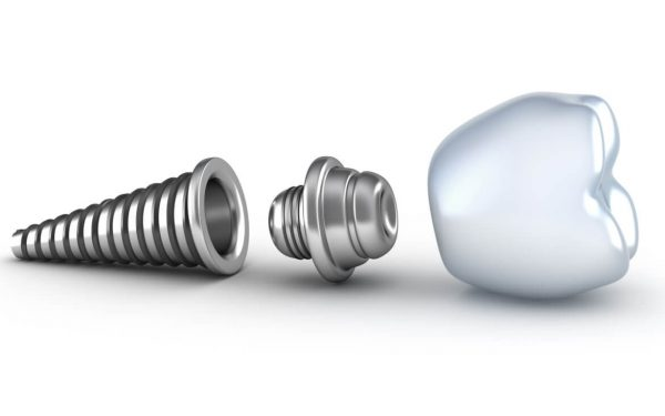 Where can I find good dental implants in Boca Raton?