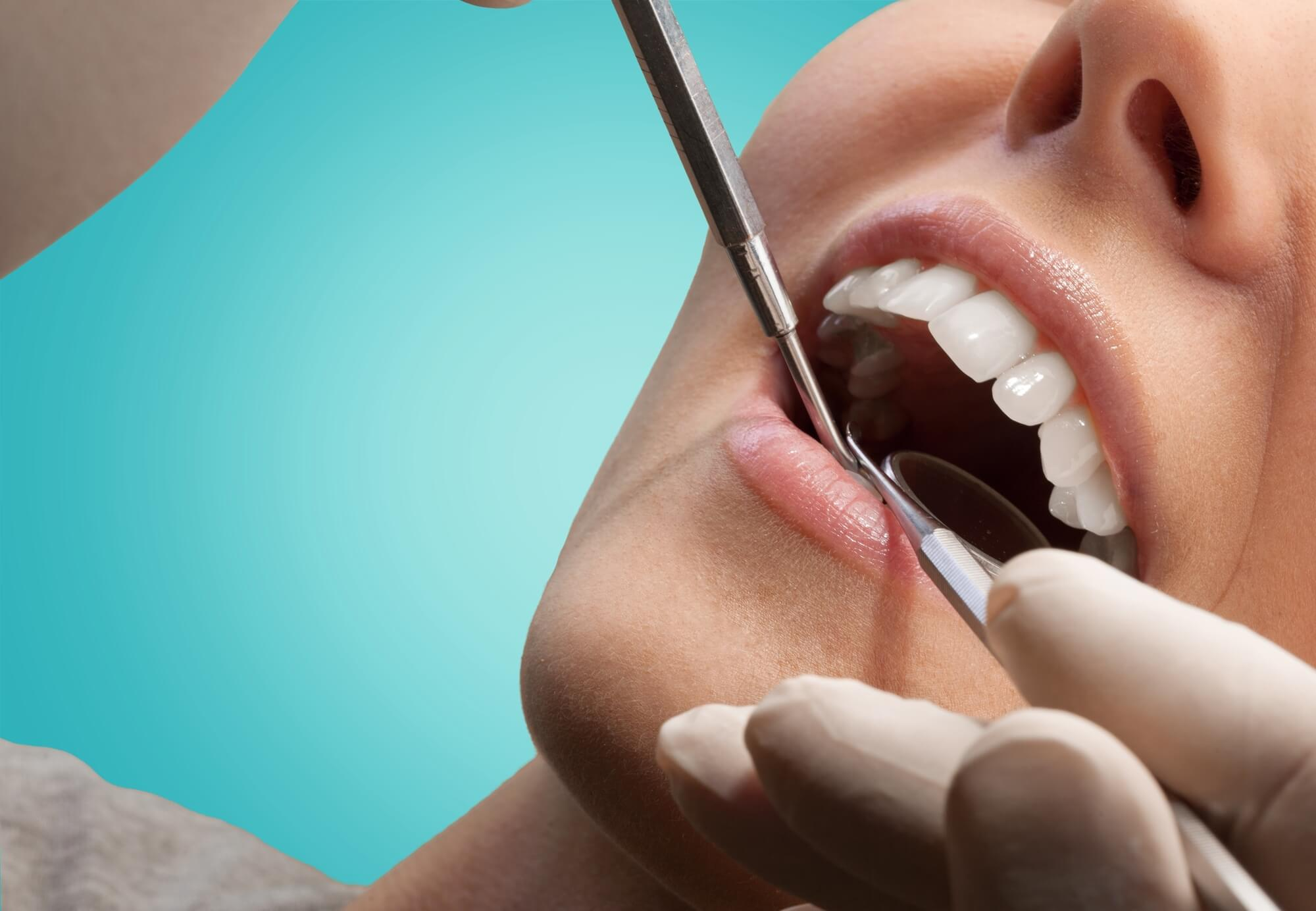 who offers dental implants in west palm beach?
